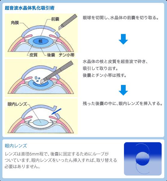 超音波水晶体乳化吸引術